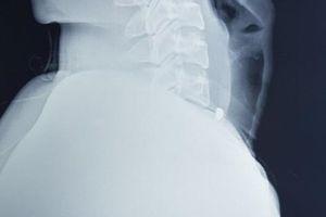 Cận Tết, thợ sửa xe bị mảnh kim loại găm vào cổ