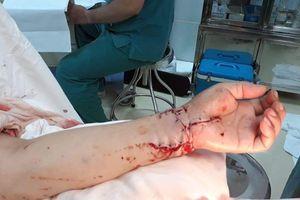 Đã nối bàn tay người phụ nữ bị chém đứt lìa trong tiệc tất niên