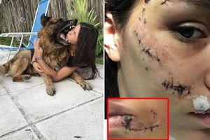 Cô gái phải khâu 40 mũi trên mặt vì chụp ảnh cùng chó cưng