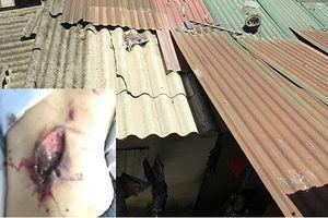 Nam Định: Bị tôn văng vào lưng, bé gái phải đi cấp cứu