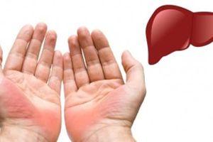 Xòe lòng bàn tay và nắm chặt, nếu thấy có dấu hiệu này hãy đi khám càng nhanh càng tốt