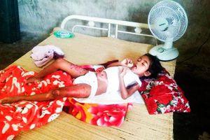 Bé 8 tuổi bị bỏng nặng vì trò đùa con trẻ