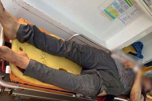 Nam thanh niên đứng cạnh đường ray bị tàu hỏa tông đứt lìa cánh tay
