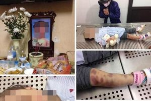 Hà Nội: Bắt 2 vợ chồng nghi bạo hành con gái 3 tuổi tử vong
