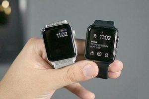 Dự báo những tính năng mới có mặt trên Apple Watch 6