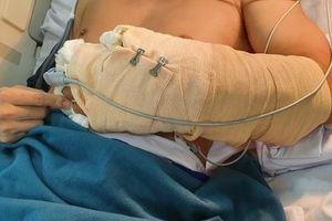 Vụ người đàn ông đi ô tô ở TP HCM bị chặt rớt tay: Nối thành công cẳng tay bị chém lìa