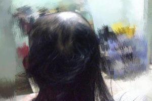 Cứ stress là nhổ tóc, cô gái nhận cái kết khiến dân mạng 'hoảng hồn'