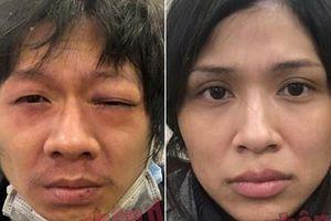 Lời khai máu lạnh của gã cha dượng và mẹ đẻ bạo hành bé gái 3 tuổi tử vong