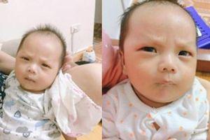 Bé trai sinh ra đã có khuôn mặt 'cau có khó ở', biết được nguyên nhân ông bố cũng phải 'giật mình'
