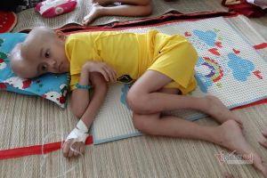 Cậu bé chật vật vì khối u trên đầu quá nặng được bạn đọc ủng hộ hơn 83 triệu đồng