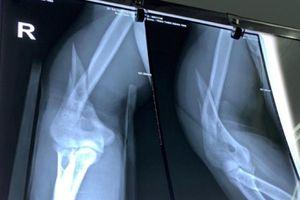 Gãy xương do vật tay quá trớn với bạn
