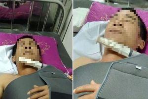 Nghệ An: Lái xe làm đứt dây mạng, người đàn ông bị hàng xóm vác dao truy sát
