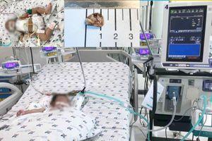 Lấy mảnh sủi trong tim cho bé 2 tháng tuổi