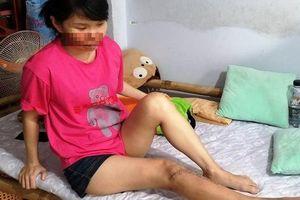 Nữ kế toán trưởng bị cháu ruột của giám đốc công ty đánh gãy chân