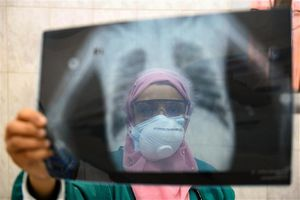 Bí ẩn COVID-19 không chỉ là bệnh hô hấp mà tấn công toàn bộ cơ thể