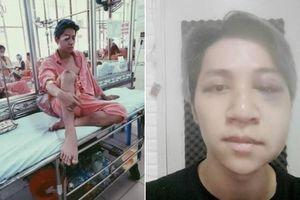 Ca sĩ Bùi Duy Ngọc bị tai nạn chấn thương não, liệt nửa mặt