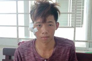 Lộ nguyên nhân thiếu niên 17 tuổi dùng dao đâm chết bạn tại cuộc nhậu
