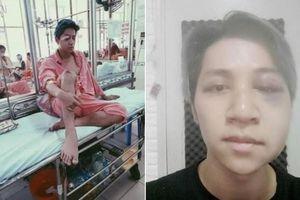Bùi Duy Ngọc bị tai nạn nghiêm trọng, liệt nửa mặt và chấn thương não