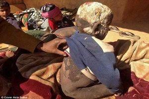 Cuộc sống khổ sở của cậu bé Nepal mắc căn bệnh làn da hóa đá