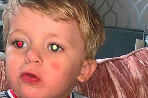 Thấy mắt của con trai đổi màu trong các bức ảnh, bà mẹ trẻ không ngờ đó là dấu hiệu của bệnh ung thư hiếm gặp và ác tính