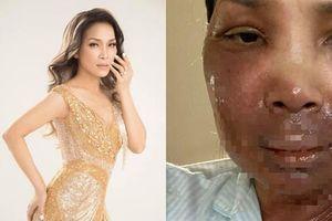 Hồng Ngọc bất ngờ công khai hình ảnh bị bỏng 2/3 gương mặt vì nổ nồi xông hơi