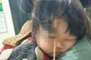 Bé gái 3 tuổi bị que kem chọc xuyên hốc mắt vì vừa ăn vừa chạy nhảy