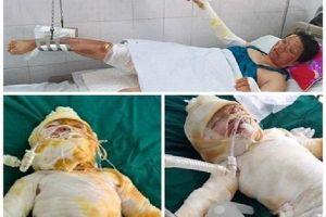 Chập điện cháy điều hòa: Chồng chết, vợ và hai con nhỏ bỏng nặng nguy kịch