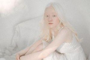 Vẻ đẹp lạ của nữ sinh bạch tạng hóa nàng thơ khi lần đầu làm mẫu ảnh
