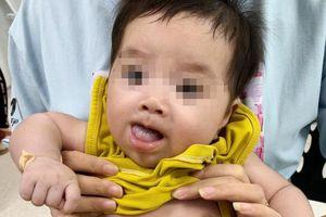 Bác sĩ đưa đèn và dao mổ vào bụng bé 2 tháng tuổi để cắt nang mật