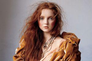 Siêu mẫu Anh có tuổi thơ bị bắt nạt vì mái tóc đỏ