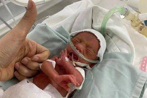 14 năm chờ đợi, con chào đời chỉ nặng 600 g