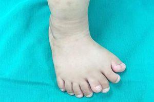 Hy hữu: Bé trai Thanh Hóa có 9 ngón trên 1 bàn chân