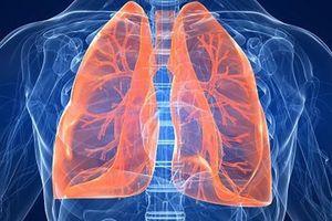 Phổi của chúng ta rất cần được chăm sóc bằng những thực phẩm này: Bạn hãy ăn nhiều để phổi được làm sạch, giữ ẩm và nuôi dưỡng tốt nhất