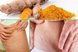 3 cách chữa rạn da sau sinh bằng nghệ, mẹ bầu nào cũng nên biết