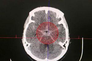 Cứu sống bệnh nhân xuất huyết màng não phức tạp