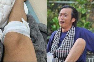 Hoài Linh bị vật nuôi 'phản chủ' đá đến bị thương băng bó ở chân