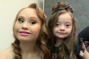 Bé gái 4 tuổi mắc hội chứng Down 5 lần lên sàn catwalk