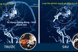 Cứu sống bệnh nhân xuất huyết màng não