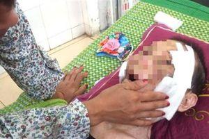 Con trai dùng chân đánh, đá mẹ 84 tuổi phải nhập viện