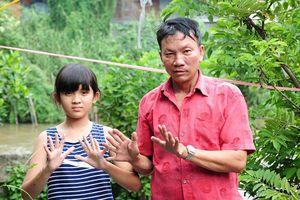 Gia đình 3 thế hệ có 24 ngón tay, chân ở miền Tây