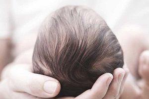 Tại sao trẻ sơ sinh lại có cứt trâu ở đầu?