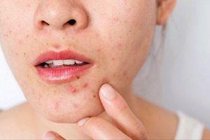 7 cách điều trị sẹo mụn hiệu quả