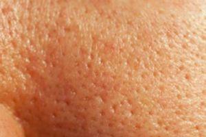 Vì sao lỗ chân lông trên da mặt càng ngày càng to?