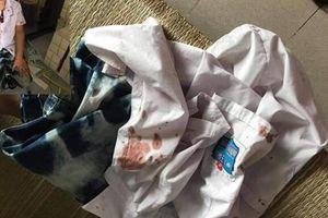 Công an Hòa Bình vào cuộc vụ người đàn ông hành hung bé trai lớp 1