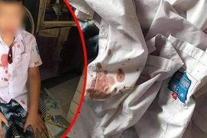 Hòa Bình: Tạm giữ phụ huynh xông vào trường hành hung học sinh lớp 1 nhập viện