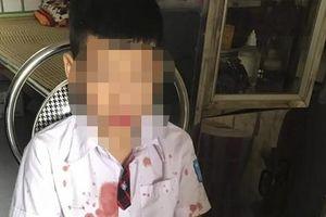 Xác định nguyên nhân bé trai lớp 1 bị phụ huynh hành hung ở Hòa Bình