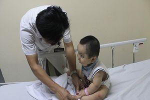 Nhiều trẻ bị bội nhiễm, chuyển biến nặng do tay chân miệng