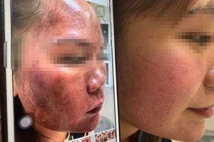 Bỏng da mặt vì tin vào mỹ phẩm lột da trôi nổi