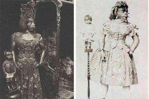 Cuộc đời đau khổ của cô gái 'quái vật' nổi tiếng lịch sử