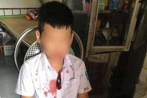 Hội Bảo vệ quyền trẻ em lên tiếng vụ phụ huynh hành hung học sinh 7 tuổi nhập viện